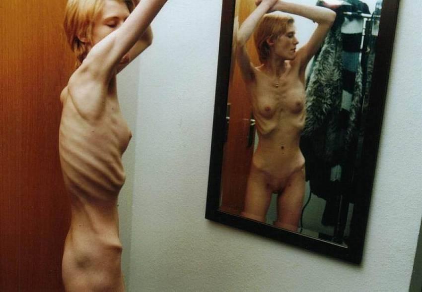 Фото порно анорексия